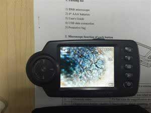کاربرد دوربین آندوسکوپی